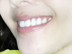 隐形牙齿矫正要多少钱?